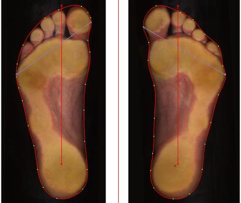 Bilde (scan) av føttenes underside.